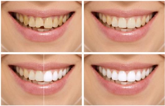 Was ist ein Zahnbleaching?